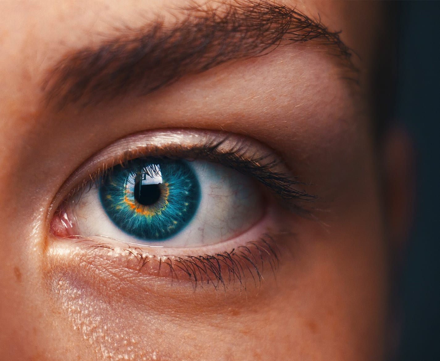 6 Things You Need to Know about Contact Lenses